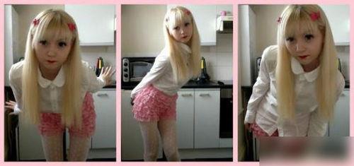 英国15岁白化病女孩走红