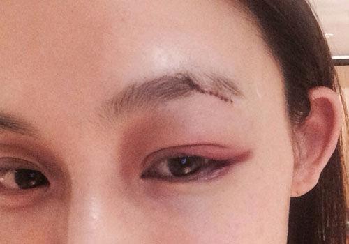 范玮琪摔伤眉头缝20针